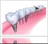 New Dental Implants