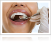Single Tooth Replacement Procedure