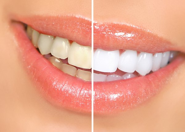 teeth whitening St. Louis
