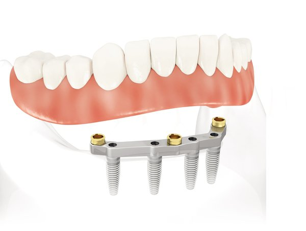 all-on-4 dental implant