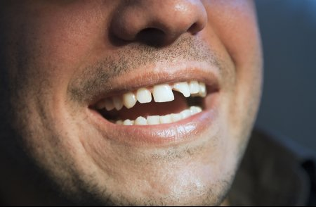 Benefits of Single Tooth Replacement