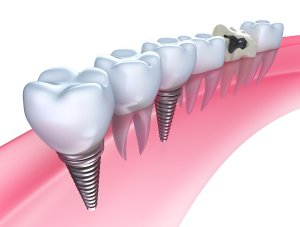 New Dental Implants