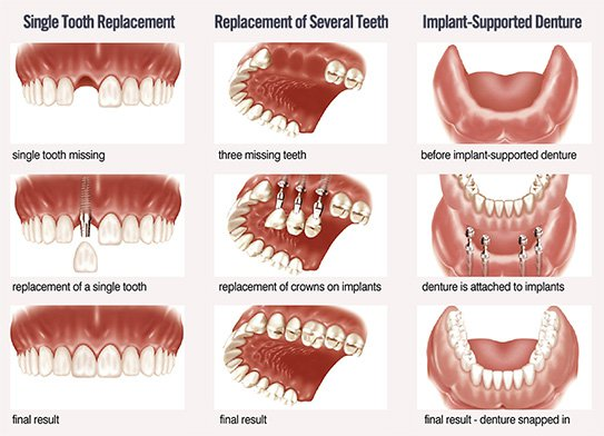 Teeth Implant Types