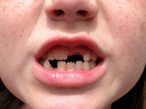 St. Louis Dentist