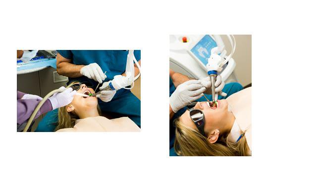 Precise Dentistry with the Solea Laser